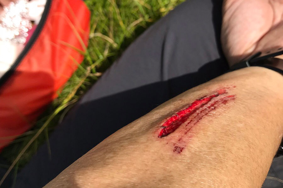 山で怪我した時の傷口