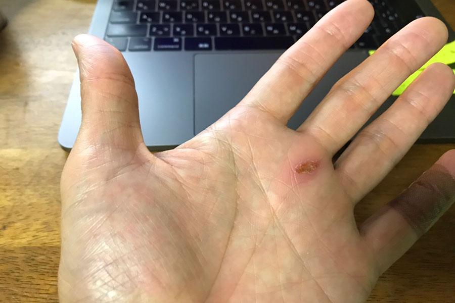 手の平を負傷